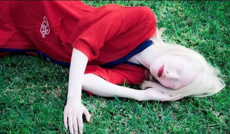 ruby albina1